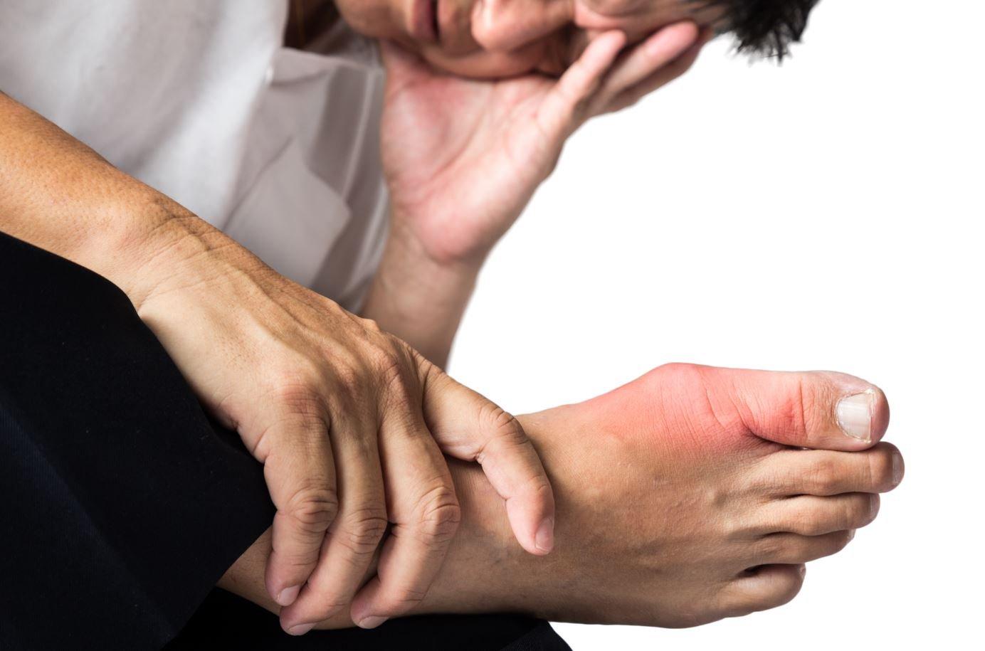 Putika - znaki, simptomi, preventiva in zdravljenje